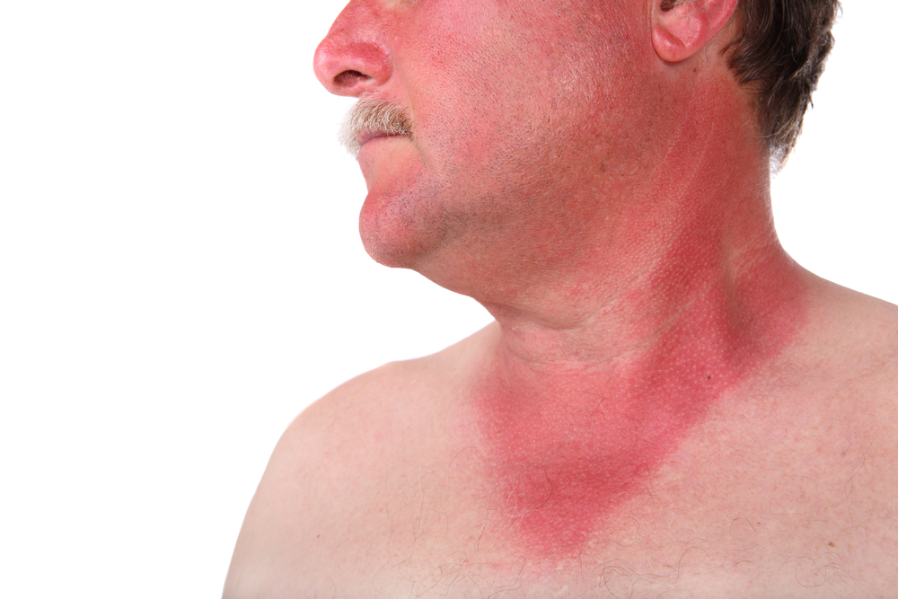 Геморрагические лихорадки
