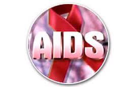 Вирус СПИДа: строение вируса, механизм заражения организма.