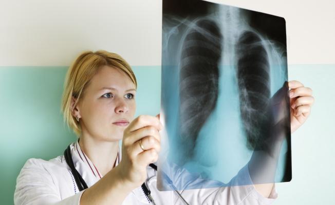 Заболевания легких: саркоидоз