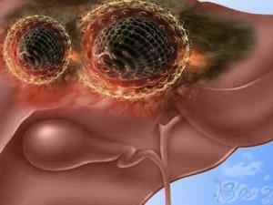 Как снизить риск развития гепатита