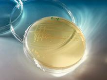 Бактерии обладают зрением, показало исследование