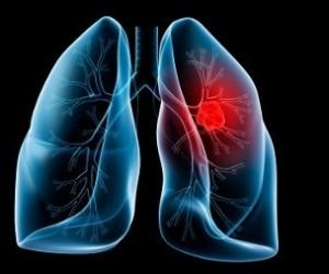 В легких найдены обонятельные клетки