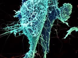 Медики проанализировали, как вирус Эбола отключает иммунитет
