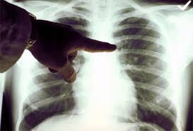 Эмфизема лёгких
