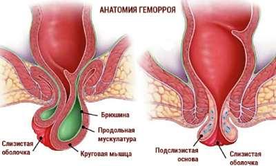 Геморрой – симптомы, диагностика, лечение