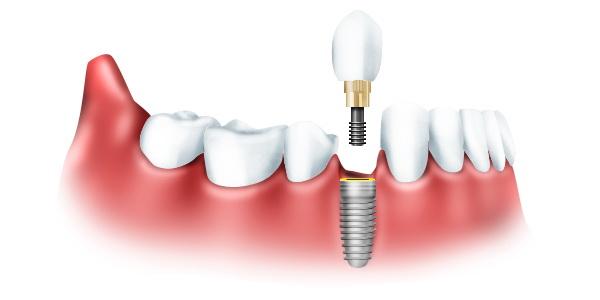 Имплантация зубов или традиционное протезирование?
