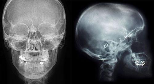 Насколько опасным для детей может быть проведение рентгена головы