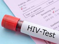 Число инфицированных ВИЧ россиян превысило один миллион