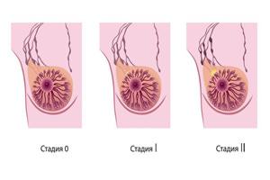 Рак груди: как защититься от рецидива?