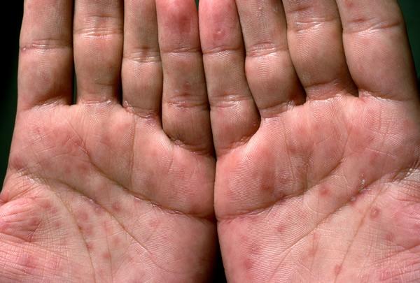 Венерическое заболевание сифилис – описание, причины, признаки, виды, диагностика, профилактика, лечение