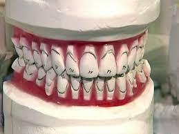 Как сделать зубы в Китае дешевле чем в России