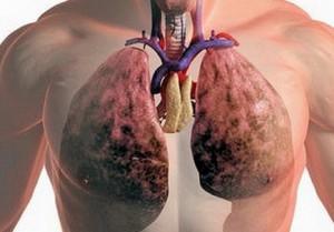 Герпес легких называется герпесной пневмонией