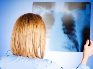 Пневмония: вовремя определить первые признаки