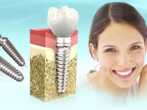 Практичность и многогранность современных технологий имплантации зубов