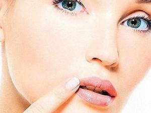 Лабиальный герпес: гигиена и профилактика