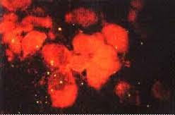Клацид при хламидиозе
