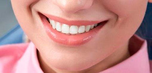 Красивая улыбка за доступные деньги
