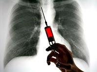 Искусственный интеллект упростит процесс диагностики болезней легких