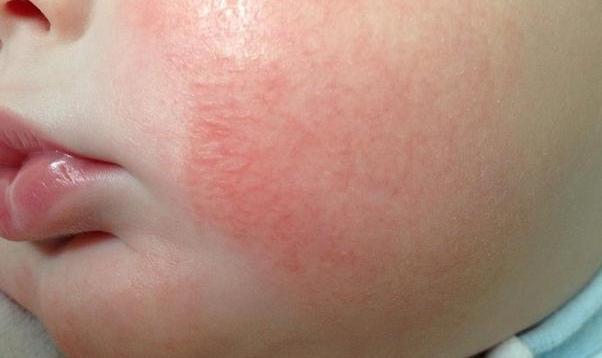 Причины раздражения кожи малыша