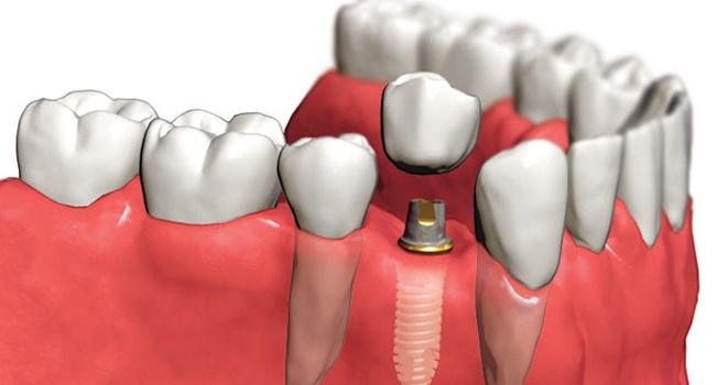 Виды комплексной имплантации зубов под ключ