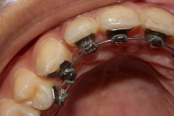 Применение брекетов в современной ортодонтии