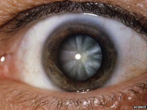 Клинические проявления и лечение катаракты