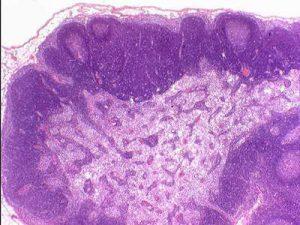 Туберкулезный лимфаденит