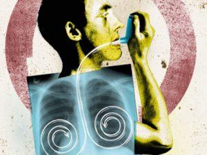Аллергические заболевания легких