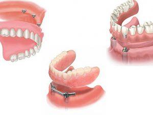 Профессионально проведенное зубное протезирование, при полном отсутствии зубов, с современными имплантами.