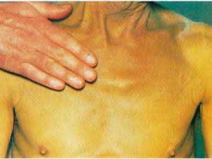 Желтуха: общая характеристика заболевания
