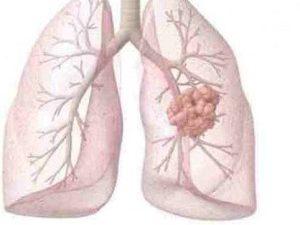 8 явных симптомов рака легких