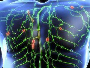 7 симптомов, указывающих, что ваша лимфа забита токсинами, и несколько способов ее очистки!