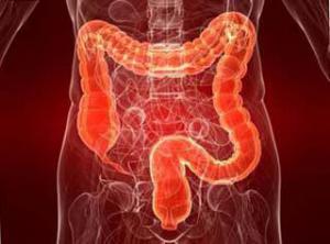 Причины дисбактериоза кишечника у человека