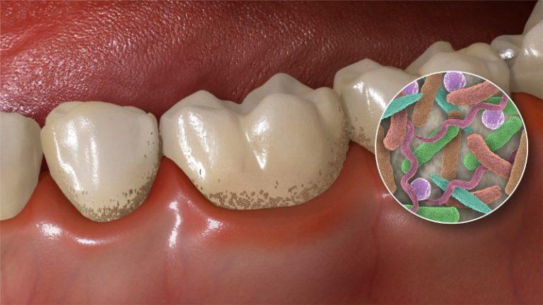Зубной налет провоцирует воспаление легких