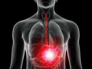 Частая изжога повышает риск рака пищевода на 80%