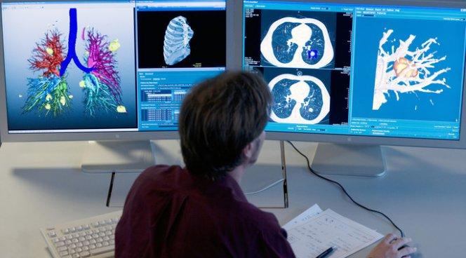 Немецкие эксперты проанализировали преимущества методов лечения эмфиземы легких