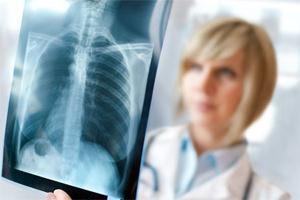 Туберкулез: как избежать кашля с кровью