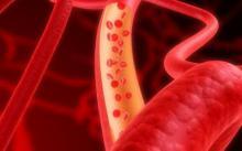 Ученые планируют использовать ультразвук в качестве контрацептива для мужчин