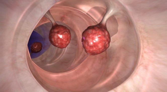 Смертность от рака кишечника в Австрии снизилась за 10 лет на 30%