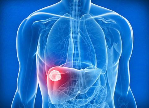 Причины, симптомы, диагностика, лечение и профилактика рака печени