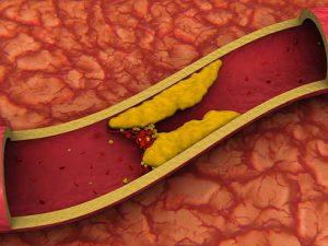 Что делать если повысился холестерин в крови?