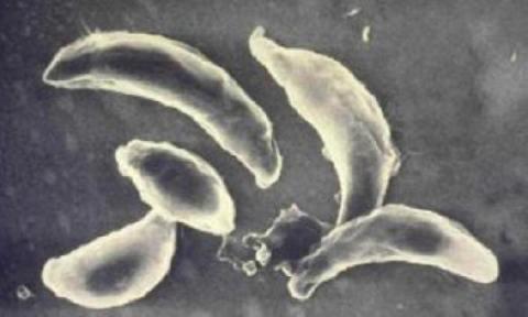 Инфекции, вызванные одноклеточными организмами