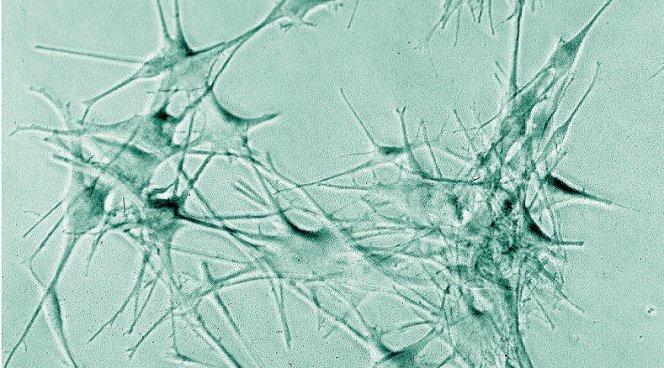 Ведущую роль в защите кишечника от бактериальных инфекций играют дендритовые клетки и клетки эпителия