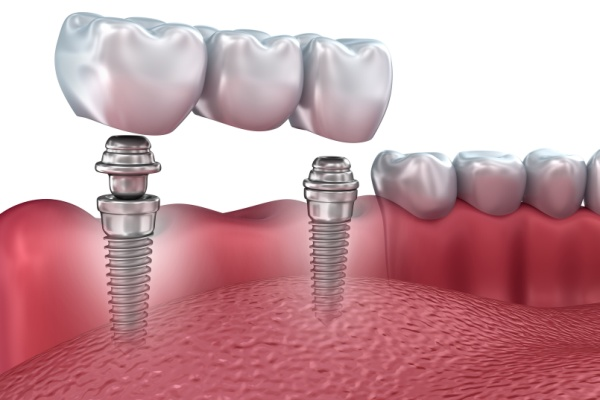 Правила и необходимость ухода за имплантами зубов