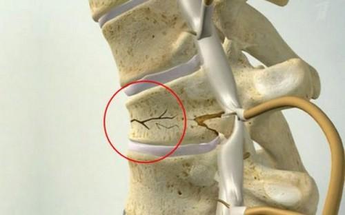 Опасен ли перелом позвоночника?