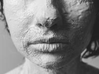 Бродалумаб зарегистрирован в Европе для терапии псориаза