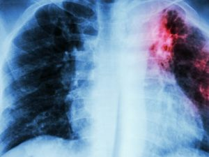 Туберкулёз лёгких – причины, клиника и лечение