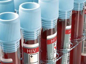 Намеренное заражение ВИЧ не будут считать преступлением