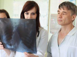 Бронхоэктазы: симптомы, методы обследования