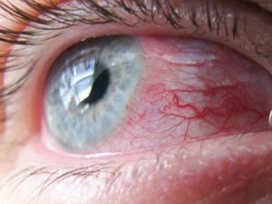 Болезнь глаз. Конъюнктивит
